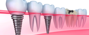 Dental Implant Services in Calgary