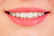 Buy Retainers To Straighten Teeth Online From Pure Smiles Online