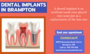 Dental Implants Treatment in Brampton,  ON