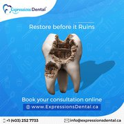 Dental Treatments | Dental Health Services | Expressions Dental