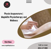 Physio Acupuncture | Maplelife Physiotherapy and Wellness